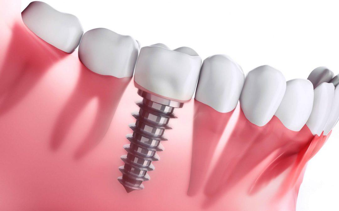 What to Expect During a Dental Implant Procedure & Its Advantages?
