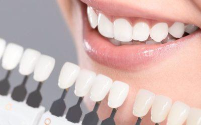Benefits of Restoring Smiles